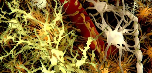 Amyloid-Plaques-and-Neurons-in-the-Brain-by-Juan-Gartner [psypost.org]