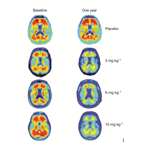 The red marks show amyloid plaques but after a year they are gone in the highest dose group. [via telegraph.co.uk]